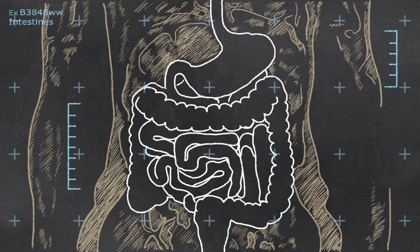 Know Thyself: How the Gut Wall Works (and ways to keep it strong)