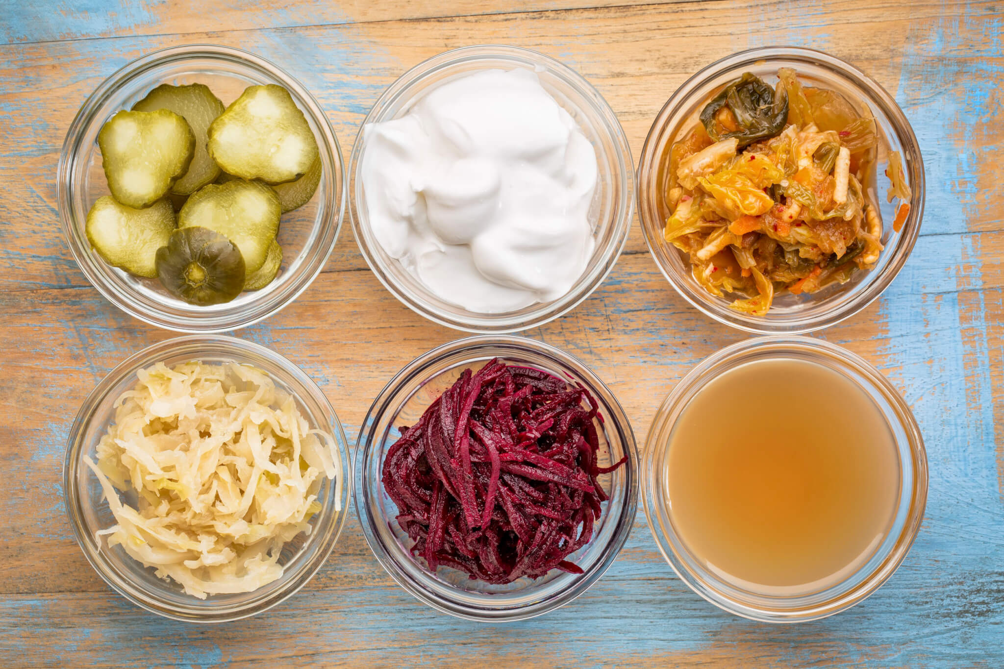 Your Guide to the Best Probiotic Foods