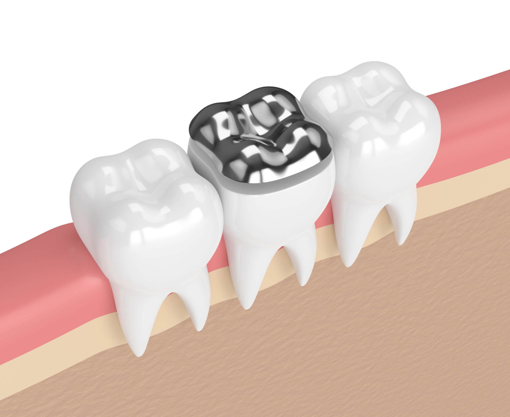 Planning on Removing Amalgam Fillings – Side Effects to Note